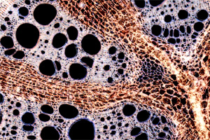 Vascular tissue of Aristolochia sipho.