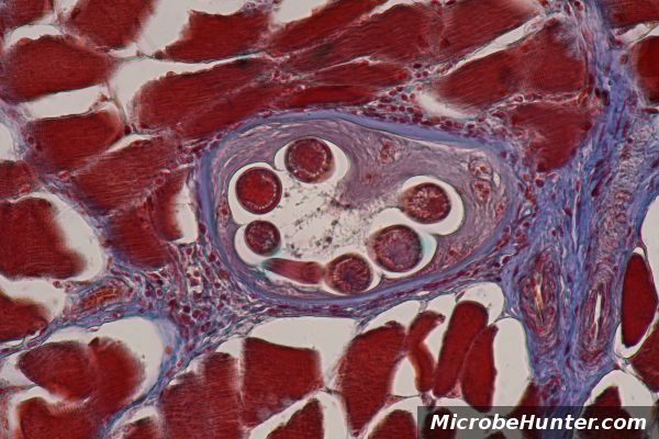 Trichinella spiralis nematode parasite