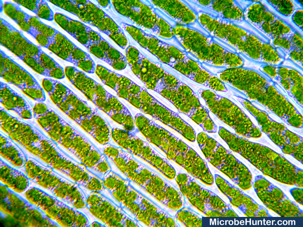 Moss under the microscope