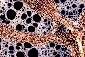 Vascular tissue of Aristolochia sipho.