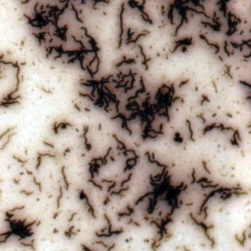 Bacteria stained